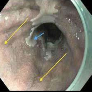 Circumferential Radiofrequency Ablation (RFA) of the lower esophagus