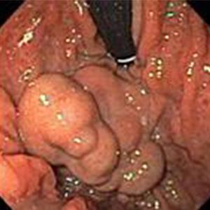 Large multilobulated gastric varix in the fundus