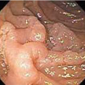 Large sessile adenoma in the duodenum.