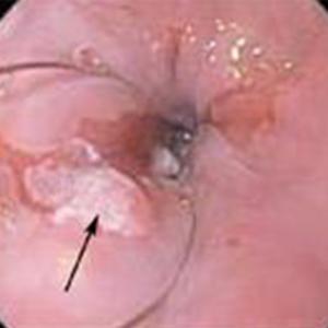 "Nodular lesion along a ""tongue"" of Barrett's mucosa."
